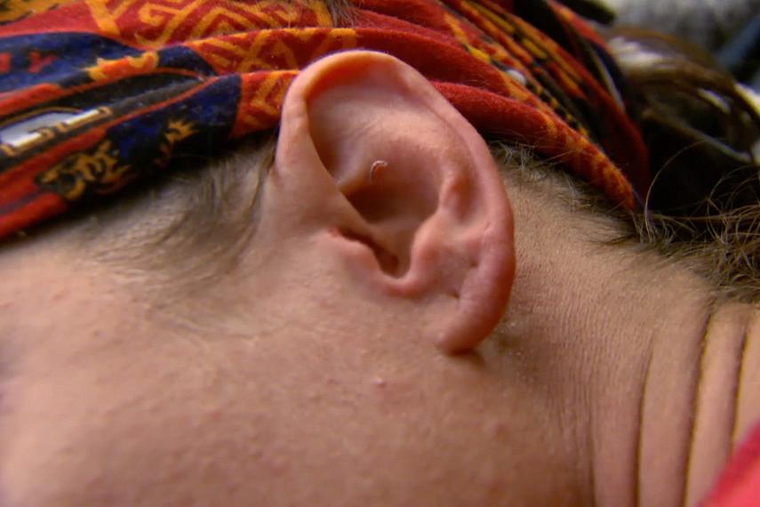 Episode 1: A bug crawls into Jenny's ear.